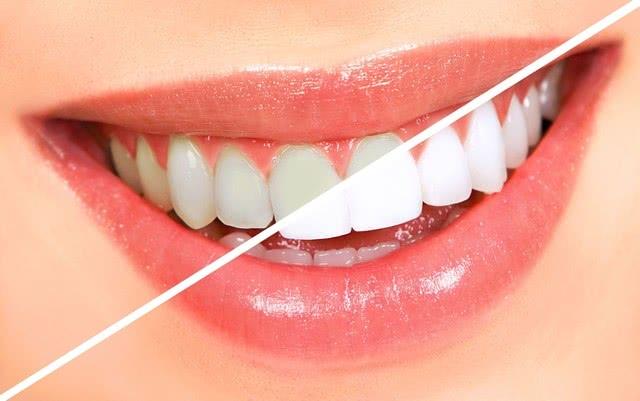 Dentisteria Estética